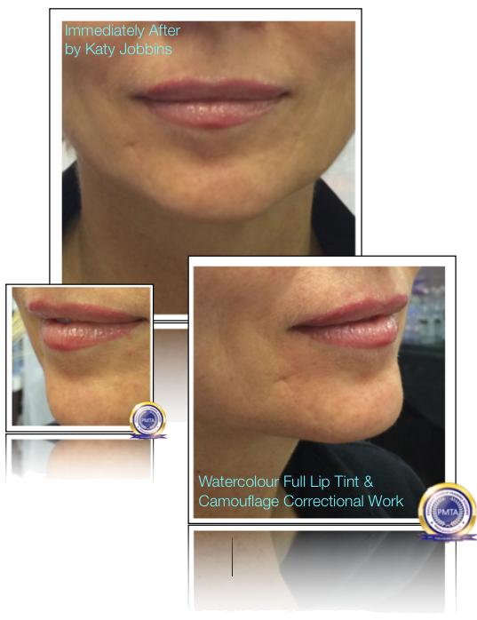 26-2-Katy Jobbins Permanent Makeup Watercolour Full Lip Tint And Camouflage Correctional Work