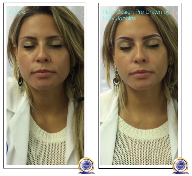 Safe And Simple Alternative To Surgical Brow Lift Katy Jobbins