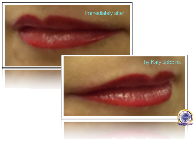 Part 3 of Complete Permanent Makeup Process - Showing Immediately After Having A Watercolour Full Lip Tint Permanent Makeup Procedure.