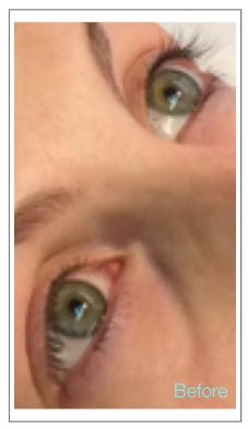Before Permanent Upper & Lower Eyelash Enhancement