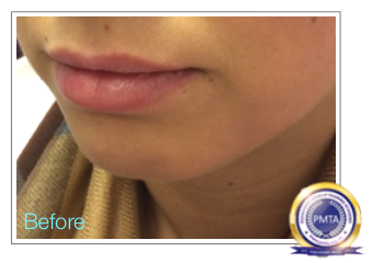 Lips Before - Day by Day Healing Schedule for Permanent Makeup Full Lip Tint