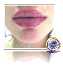 3 Days After Permanent Makeup Watercolour Full Lip Tint