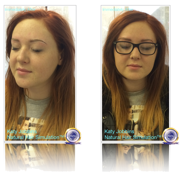 Completed Treatment Immediately After Permanent Makeup Natural Hair Simulation
